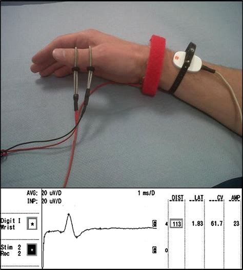 SNAPs, CMAPs and F-waves: nerve conduction studies for the